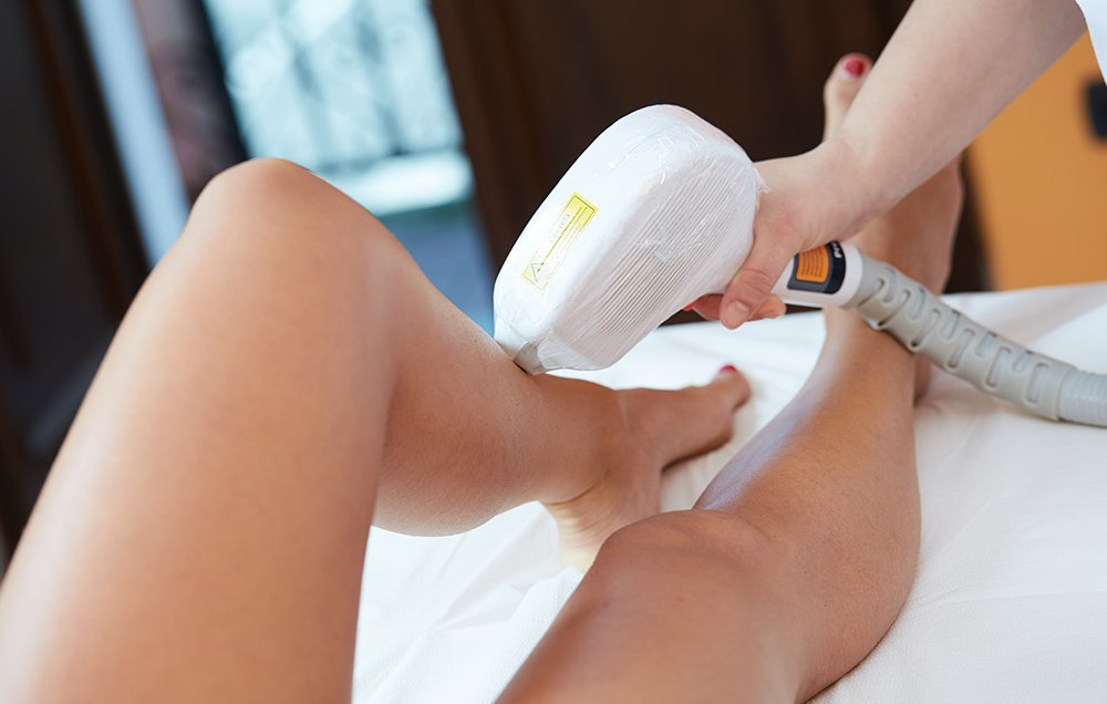 What to Know Before Getting Laser Hair Removal
